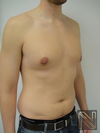 Gynecomastia: Patient 4 - After 3
