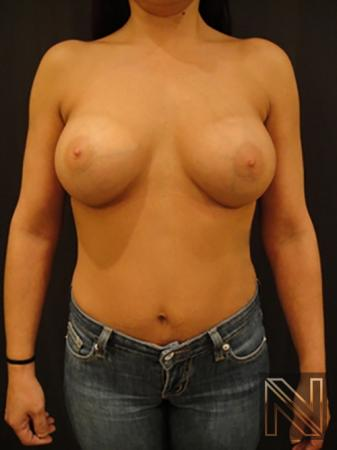 Breast Augmentation: Patient 10 - After Image 1