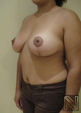 Breast Lift: Patient 6 - After Image 3