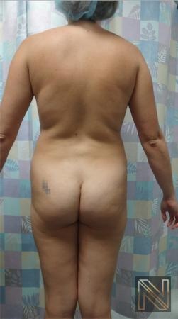 Butt Augmentation: Patient 3 - Before Image 2