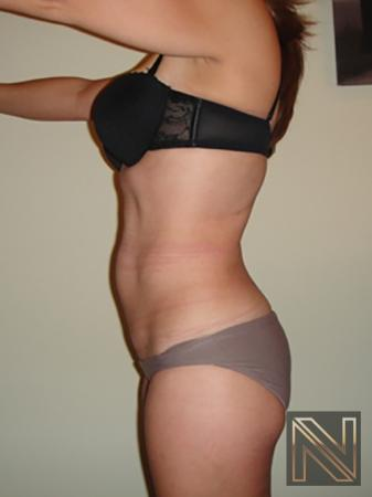Liposuction: Patient 7 - After Image 2