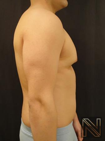 Gynecomastia: Patient 3 - Before and After Image 5