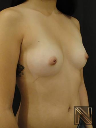 Inverted Nipple Surgery: Patient 2 - Before 3