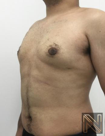 Gynecomastia: Patient 10 - After Image 5