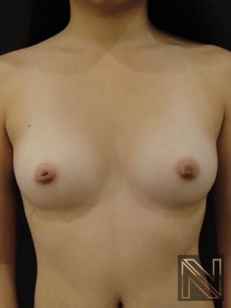 Inverted Nipple Surgery: Patient 2 - Before 1