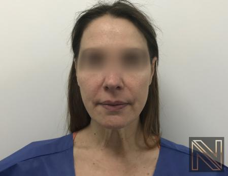 Facelift/Mini Facelift: Patient 5 - Before and After Image 3