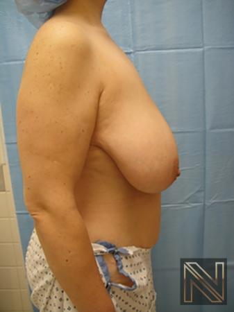 Breast Reduction: Patient 8 - Before and After Image 5