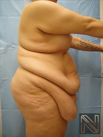 Abdominoplasty: Patient 16 - Before and After Image 3