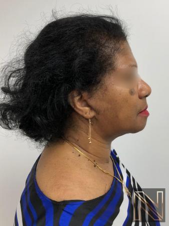 Facelift/Mini Facelift: Patient 7 - After Image 2