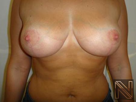 Breast Reduction: Patient 1 - After Image 3