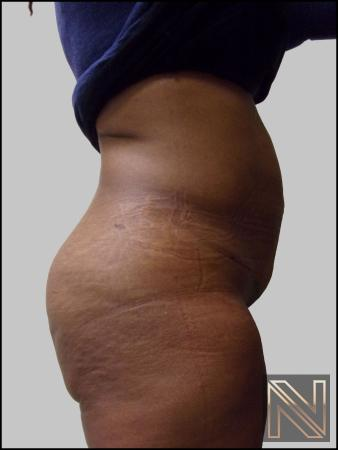 Mini Tummy Tuck: Patient 3 - After Image 2