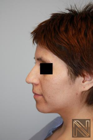 Rhinoplasty: Patient 5 - Before Image 2
