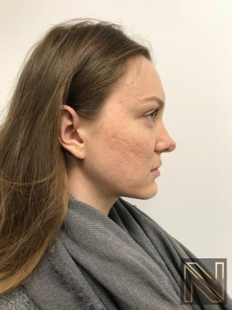 Fractional Resurfacing: Patient 4 - After Image 2