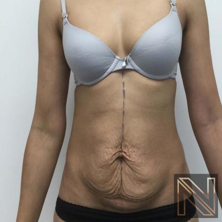 Abdominoplasty: Patient 29 - Before Image 1