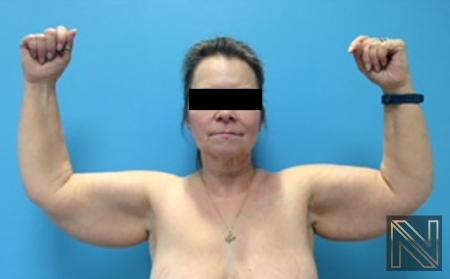 Brachioplasty: Patient 4 - Before Image