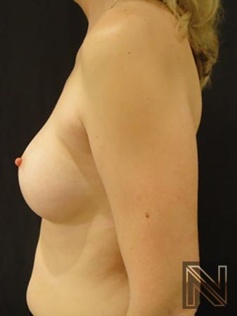 Breast Augmentation: Patient 5 - After 4