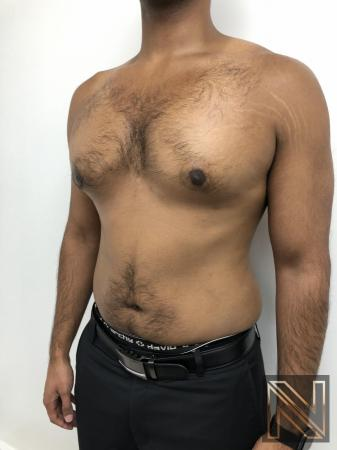 Gynecomastia: Patient 7 - After Image 3