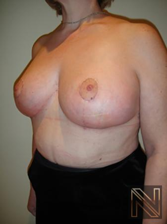 Breast Reduction: Patient 8 - After Image 2