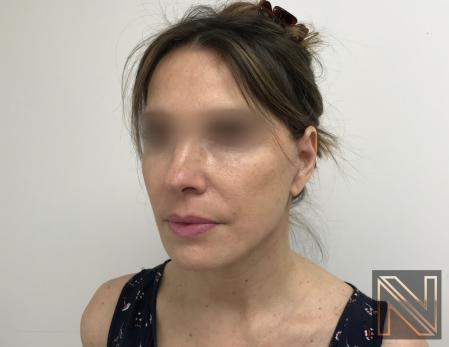 Facelift/Mini Facelift: Patient 5 - After Image 2