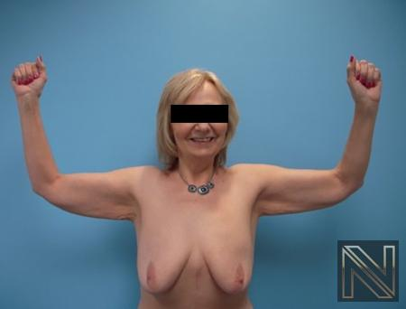 Brachioplasty: Patient 5 - Before and After 2