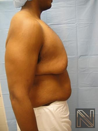 Gynecomastia: Patient 1 - Before and After 5