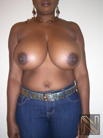 Breast Reduction: Patient 5 - Before Image