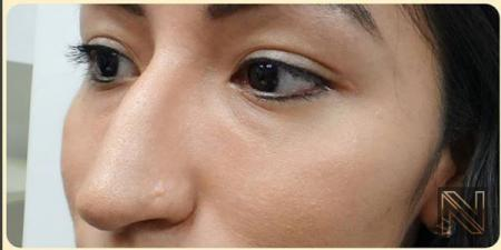 Fillers: Patient 11 - Before Image 1