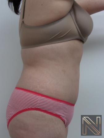 Abdominoplasty: Patient 21 - After Image 2
