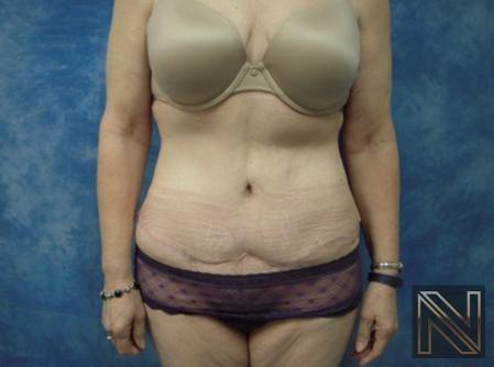 Abdominoplasty: Patient 30 - After Image 1
