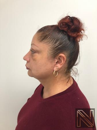 Facelift/Mini Facelift: Patient 2 - After Image 4