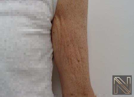 SkinTyte II™: Patient 3 - Before Image