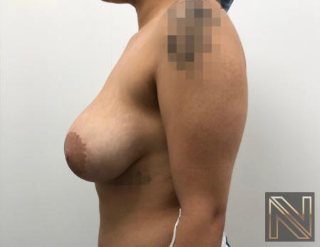 Breast Lift: Patient 17 - Before Image 4