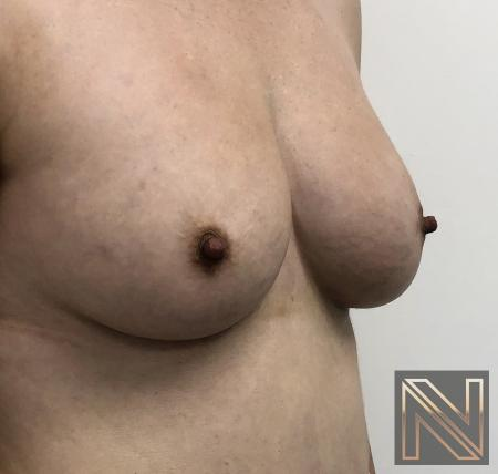 Fat Transfer - Body: Patient 2 - After Image 1