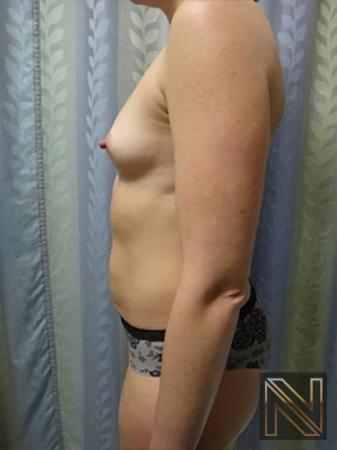 Breast Augmentation: Patient 9 - Before Image 4