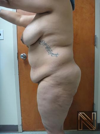Abdominoplasty: Patient 11 - Before Image 2