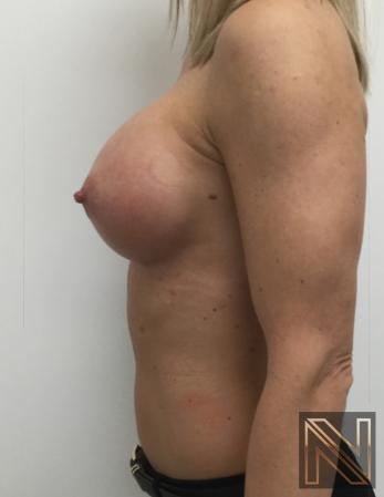 Breast Augmentation: Patient 3 - After Image 2