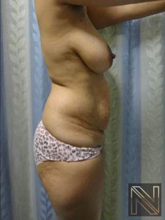 Abdominoplasty: Patient 25 - Before and After Image 2