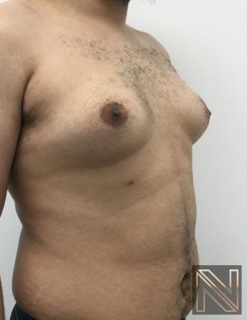 Gynecomastia: Patient 10 - Before 4