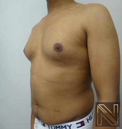 Gynecomastia: Patient 6 - Before 2