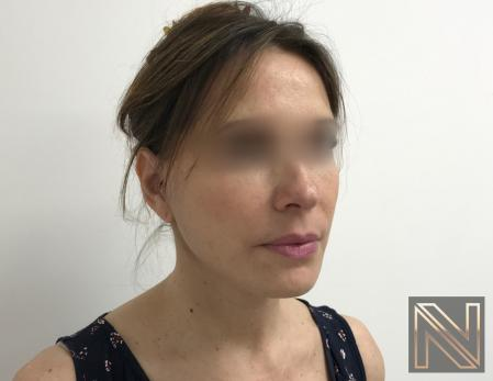 Facelift/Mini Facelift: Patient 5 - After Image