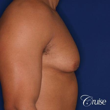 26 yo athletic patient with moderate gynecomastia - Before Image 3