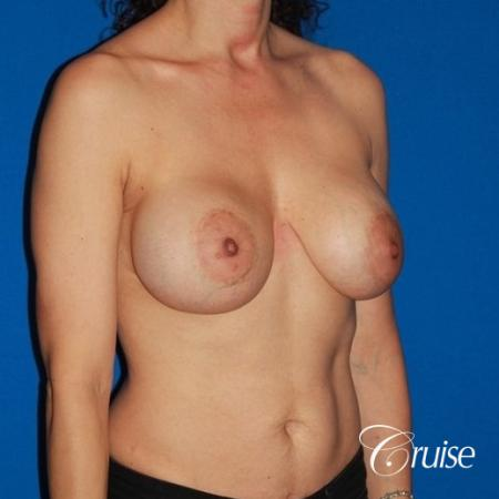 best breast lift revision with high profile silicone 425cc - Before and After Image 4
