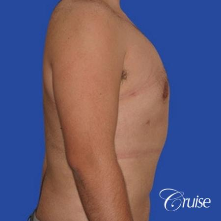 moderate gynecomastia with pointy nipples male -  After Image 4