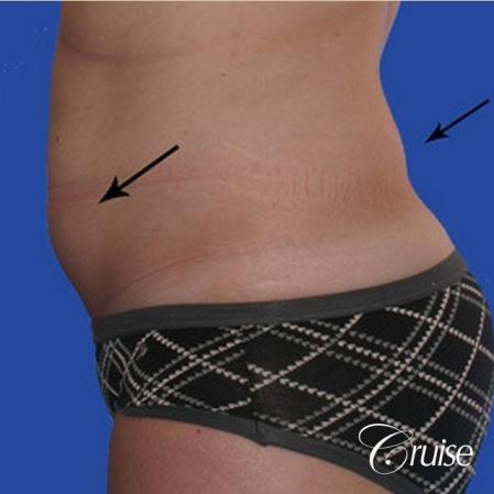 Liposuction: Patient 25 - Before Image 2
