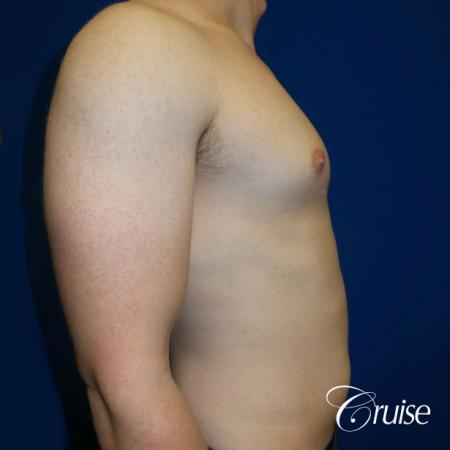 Adult gynecomastia pictures - Before and After Image 3