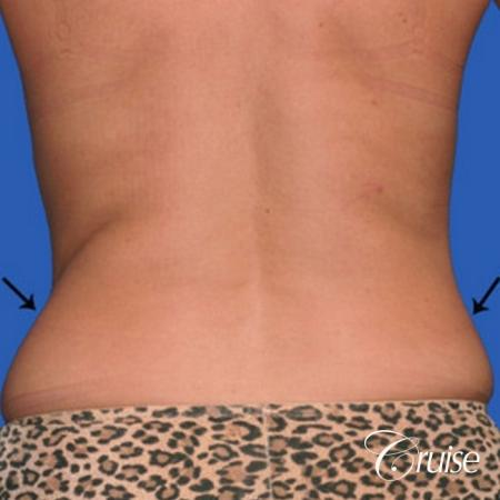 best lipo photos of love handles and stomach - Before and After Image 2