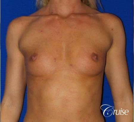 Breast Augmentation - Before Image