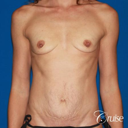 best ultra low tummy tuck scar with breast augmentation - Before Image 1