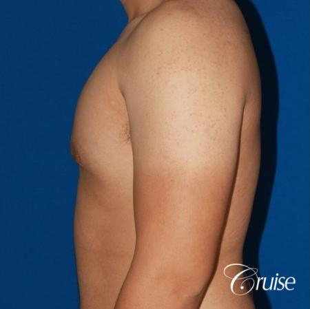 puffy nipple male breast on young adult -  After Image 2