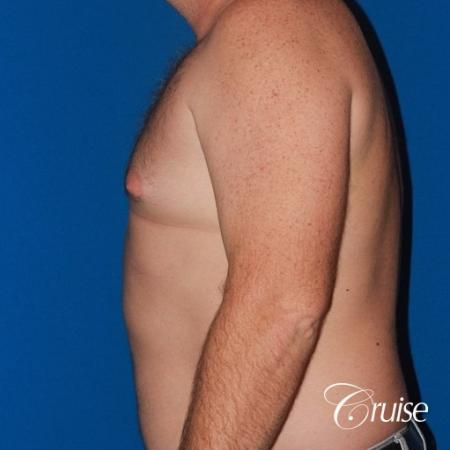 mild puffy nipple on 42 year old - Before Image 2